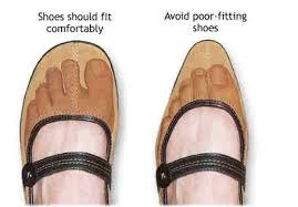 Problems caused by tight shoes
